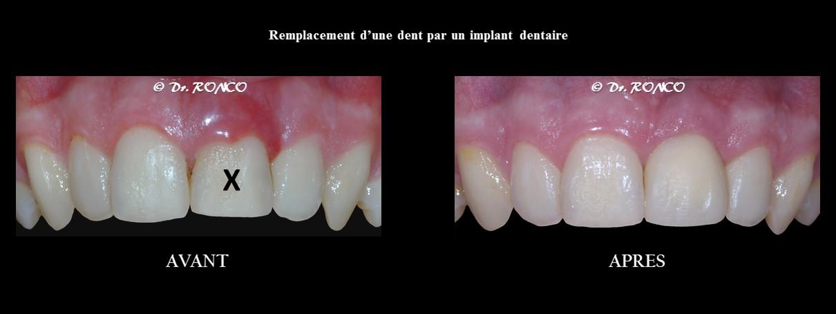 Traitement implantaire par le Dentiste Ronco