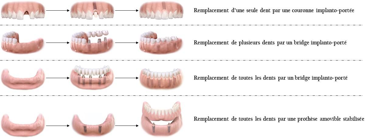 A quoi sert un implant dentaire ?