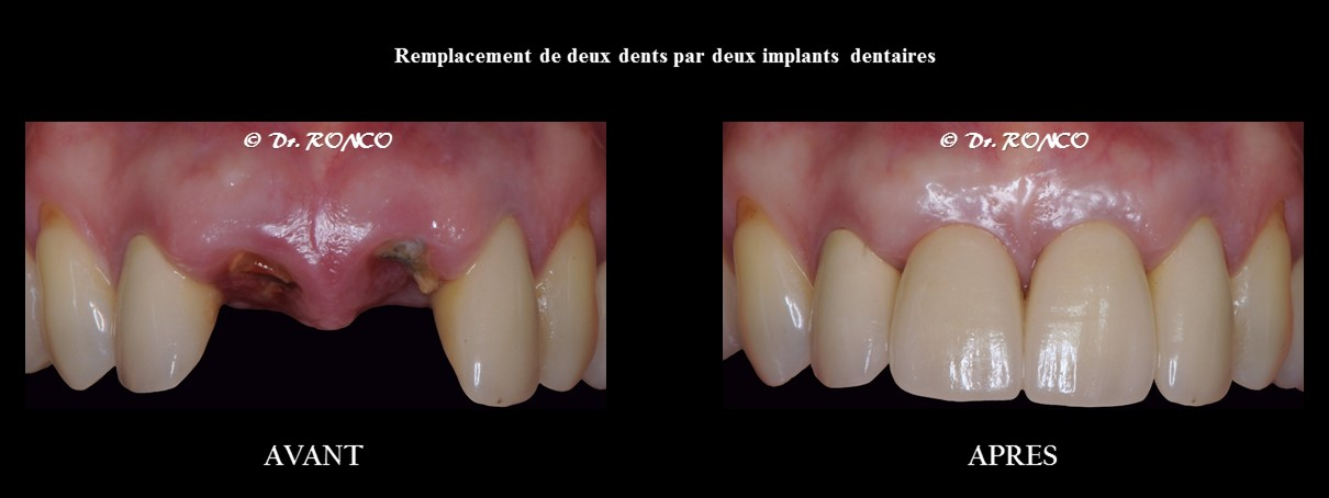 Top Implant dentaire | Définition, Explication de l'implantologie SC63