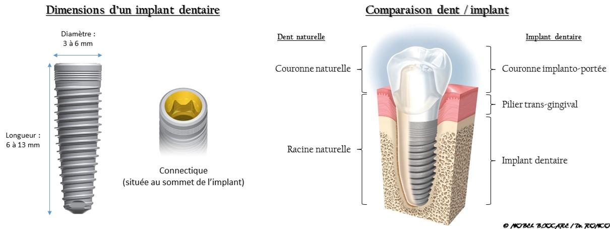Définition implant dentaire
