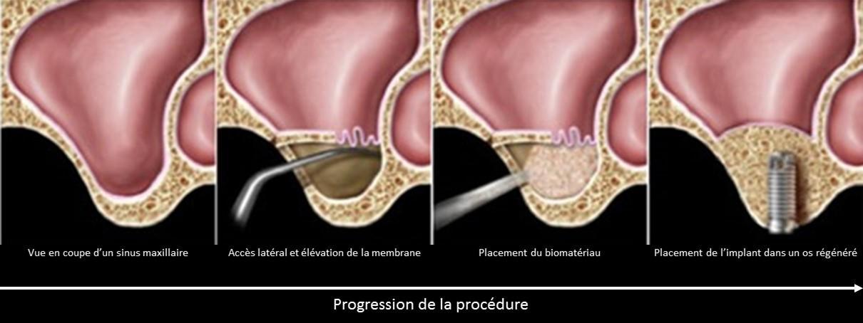 reconstruction greffe osseuse