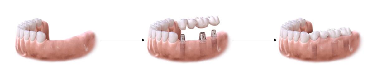 Remplacement de plusieurs dents par des implants