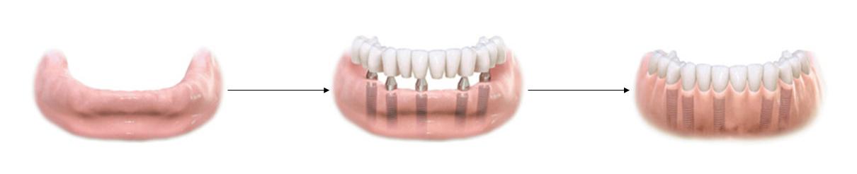 Remplacement de toutes les dents par une prothèse fixe sur implants