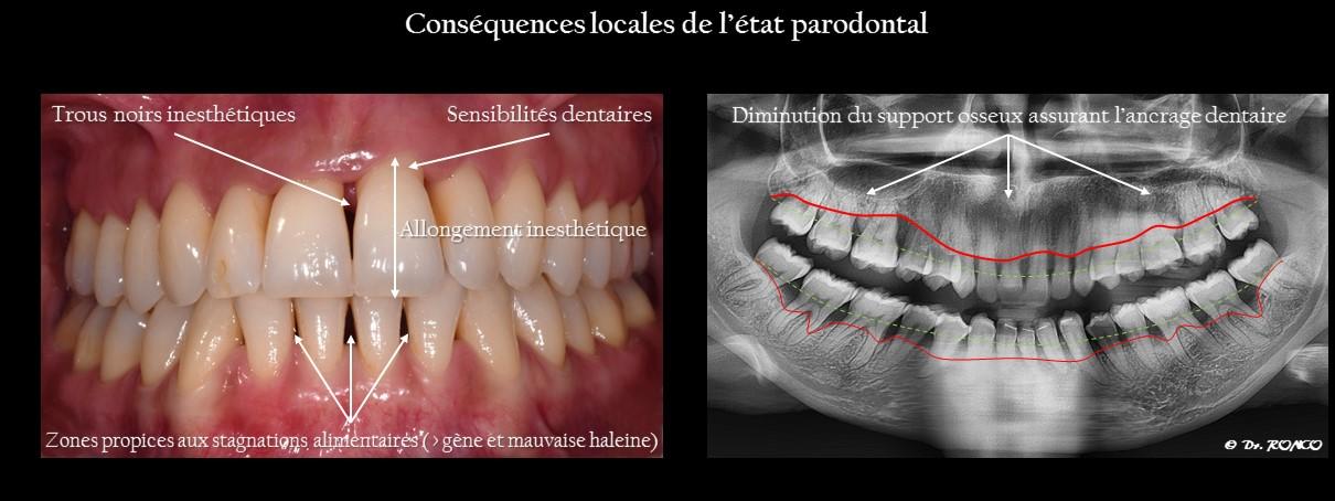 Conséquences d'une parodontite