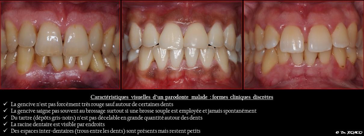 Symptome Parodontite