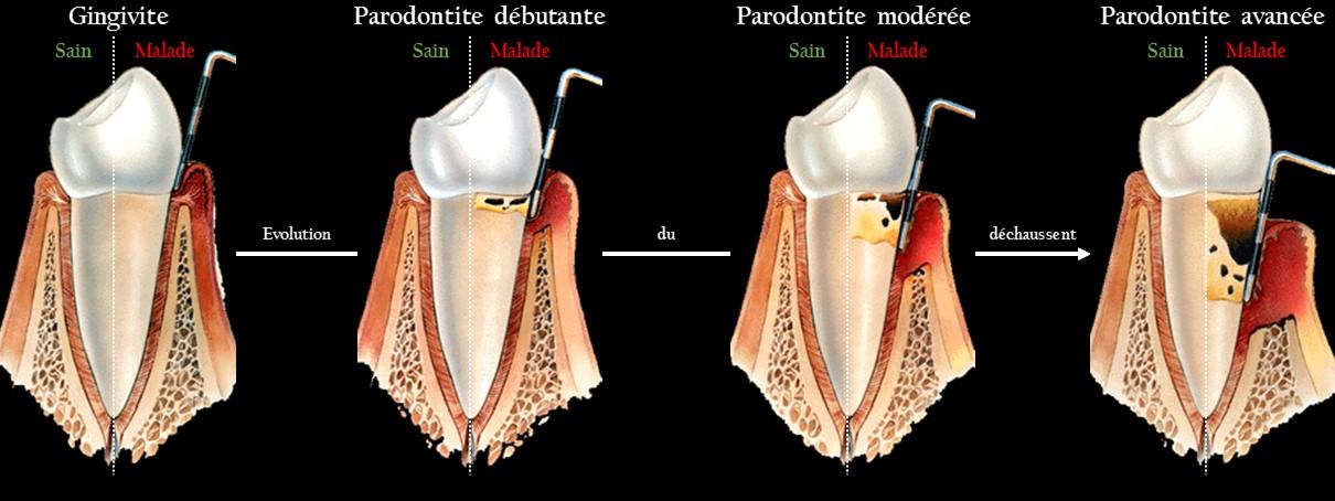 Évolution du déchaussement dentaire