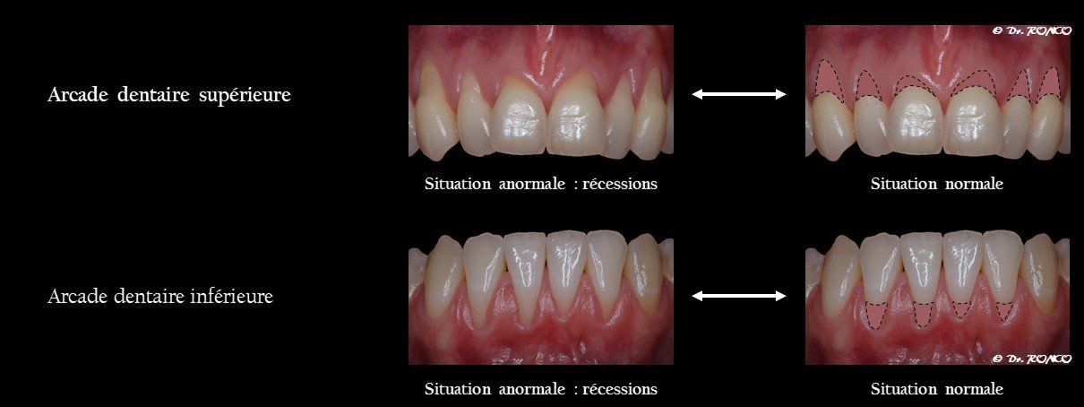 Récession gingivale