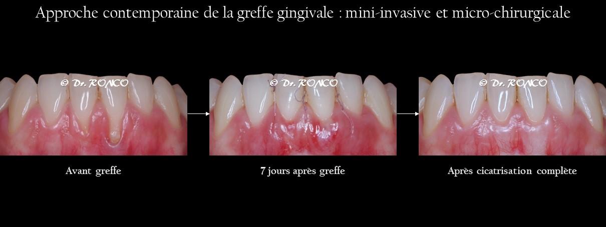 Specialiste greffe gencive Paris